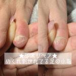 小指の伸びた爪って何に使ってるの?