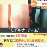 日本のワクチン接種、とんでもないスピードに加速wwwwwwwwwwwwwwwwwwwww